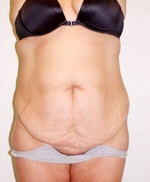 Abdominoplasty Gallery 17