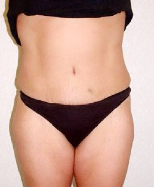 Abdominoplasty Gallery 16