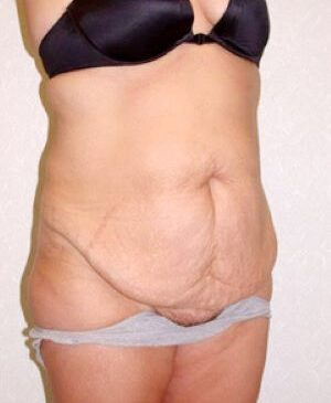 Abdominoplasty Gallery 15