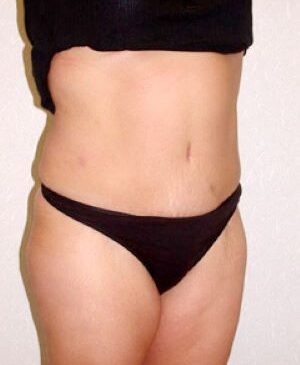 Abdominoplasty Gallery 14