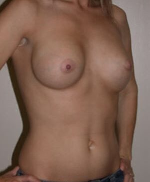 Breast Augmentation Gallery 64