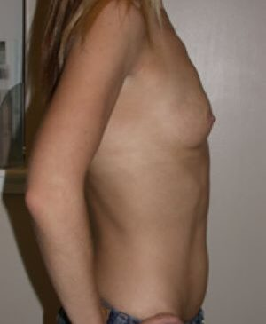 Breast Augmentation Gallery 63