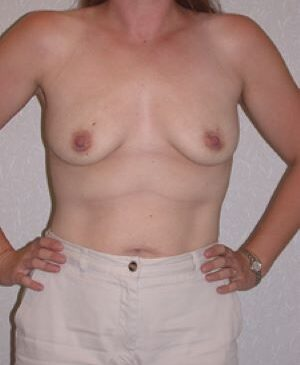 Breast Augmentation Gallery 61