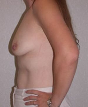 Breast Augmentation Gallery 59