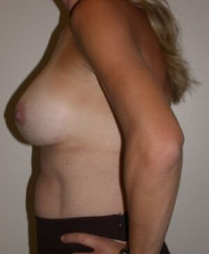 Breast Augmentation Gallery 58