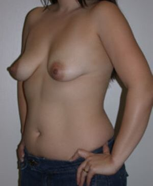 Breast Augmentation Gallery 55