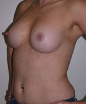 Breast Augmentation Gallery 50