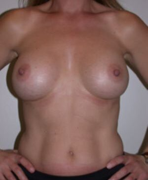 Breast Augmentation Gallery 48