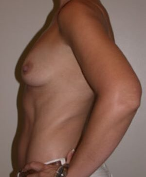 Breast Augmentation Gallery 47