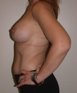 Breast Augmentation Gallery 46