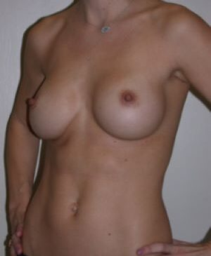 Breast Augmentation Gallery 44