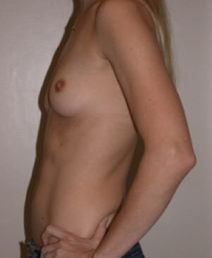 Breast Augmentation Gallery 43