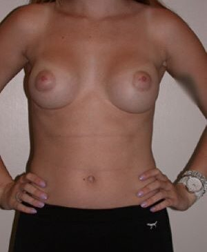 Breast Augmentation Gallery 40