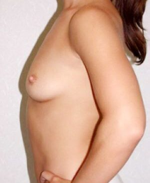 Breast Augmentation Gallery 25