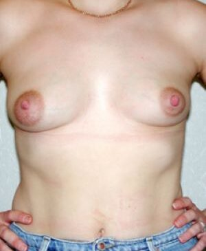 Breast Augmentation Gallery 23