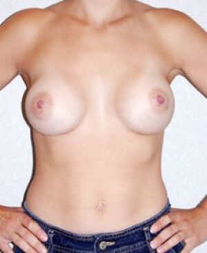 Breast Augmentation Gallery 22