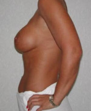Breast Augmentation Gallery 12