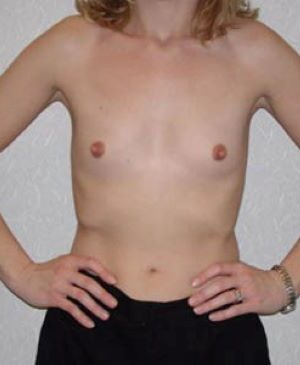 Breast Augmentation Gallery 11