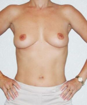 Breast Augmentation Gallery 7