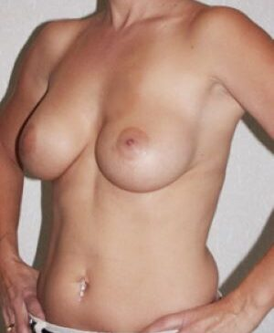 Breast Augmentation Gallery 4