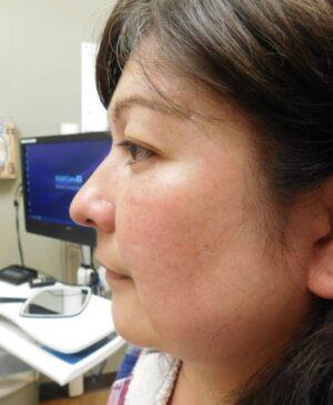 Blepharoplasty Before