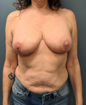 Breast Reduction Gallery 28