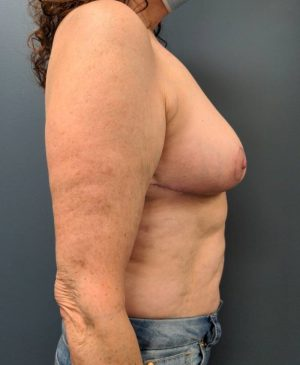 Breast Reduction Gallery 27