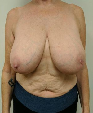 Breast Reduction Gallery 26