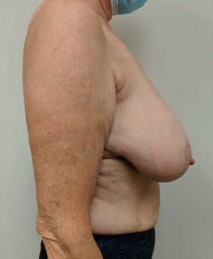 Breast Reduction Gallery 25
