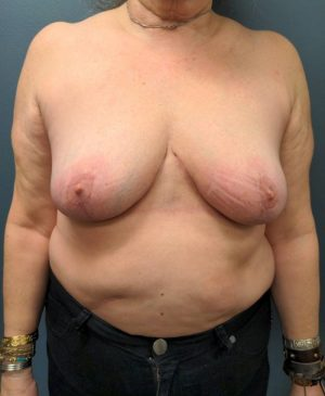 Breast Reduction Gallery 24