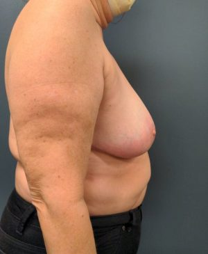Breast Reduction Gallery 23