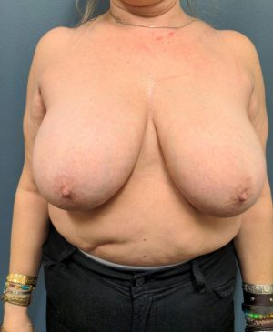 Breast Reduction Gallery 22