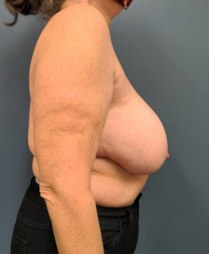 Breast Reduction Gallery 21