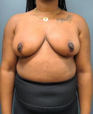 Breast Reduction Gallery 20