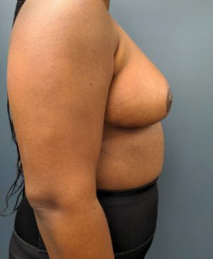 Breast Reduction Gallery 19