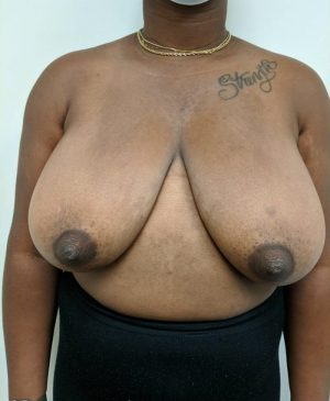 Breast Reduction Gallery 18