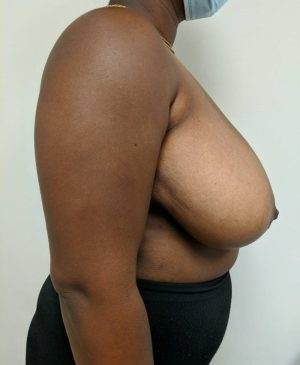 Breast Reduction Gallery 17
