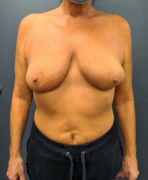 Breast Reduction Gallery 16