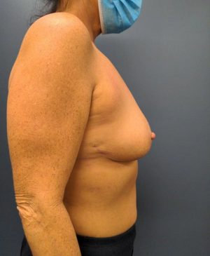 Breast Reduction Gallery 15