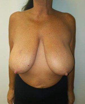 Breast Reduction Gallery 14