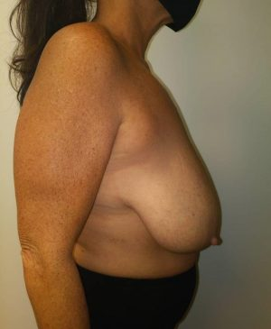Breast Reduction Gallery 13