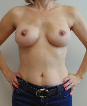Breast Reconstruction Gallery 23
