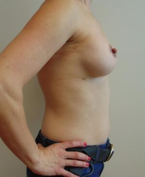 Breast Reconstruction Gallery 22