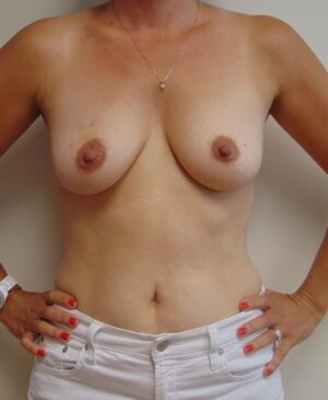 Breast Reconstruction Gallery 21