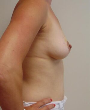 Breast Reconstruction Gallery 20