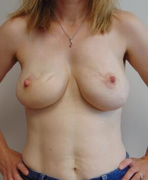 Breast Reconstruction Gallery 19
