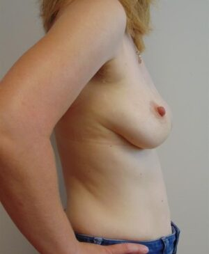 Breast Reconstruction Gallery 18