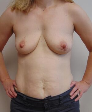 Breast Reconstruction Gallery 17