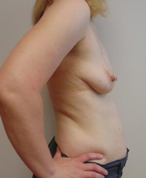 Breast Reconstruction Gallery 16