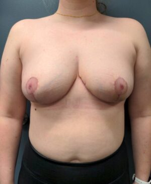 Breast Reduction Gallery 3